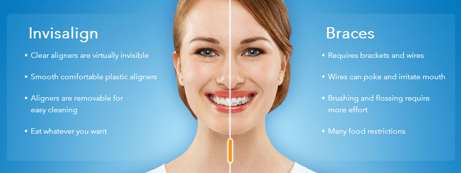 invisalign.vs.braces