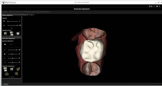 3d dental scanning technology